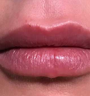 Lips after dermal filler Treatment