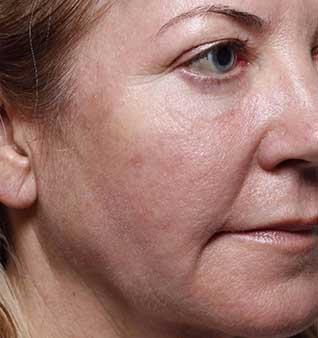 face after Volumizing fillers treatment oakville